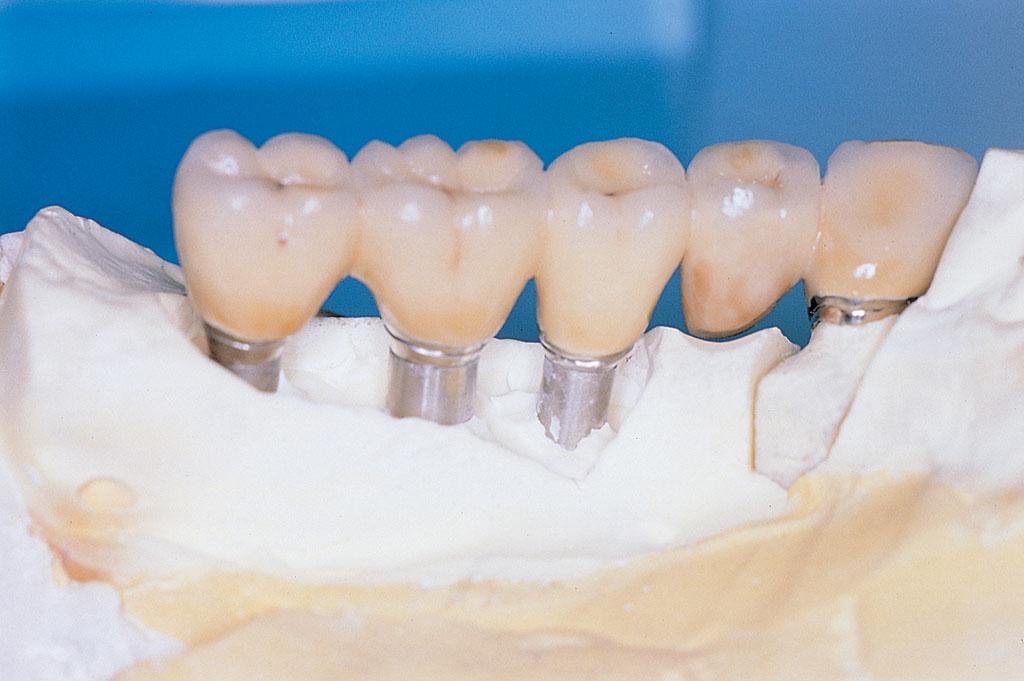 laboratorio-odontotecnico-torino-implanto-protesi-3