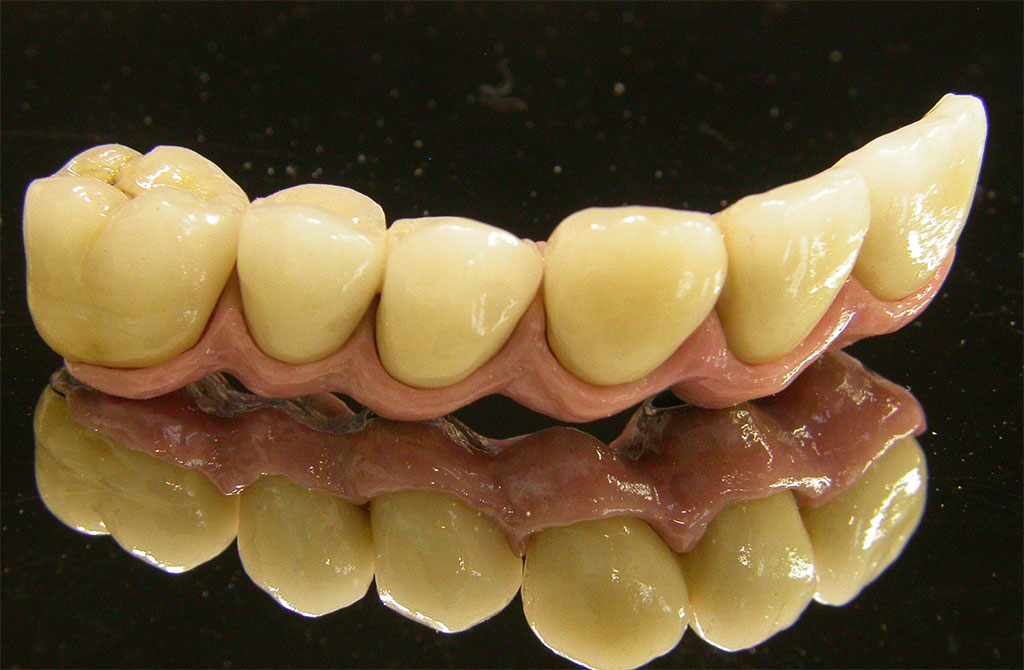 laboratorio-odontotecnico-torino-implanto-protesi