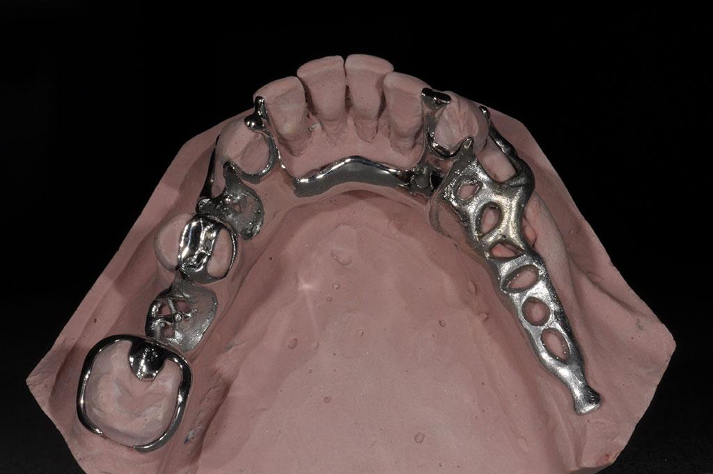 scheletrato-con-ganci-metallici-1